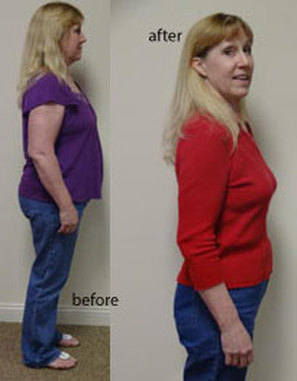 weight loss Indianapolis